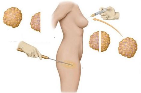 Phẫu thuật bơm ngực chủ yếu dùng mỡ nhân tạo và mỡ tự thân
