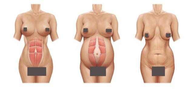 nâng ngực chảy xệ sau sinh