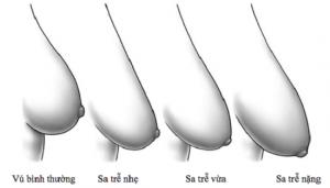 Từ A đến Z về vấn đề ngực chảy xệ ở Phụ nữ – Lời khuyên từ chuyên gia