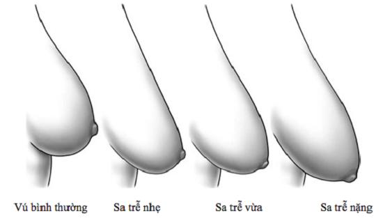 Truy tìm giải pháp nâng ngực chảy xệ hoàn hảo nhất hiện nay
