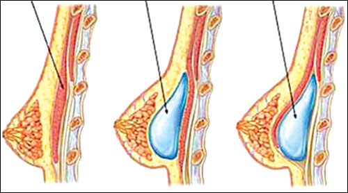 Vị trí đặt túi ngực có ảnh hưởng đến chức năng ngực