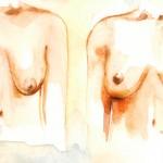 Phẫu thuật nâng ngực chảy xệ giá bao nhiêu tiền?
