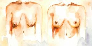 nâng ngực chảy xệ giá bao nhiêu